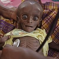 عکس کودک گرسنه